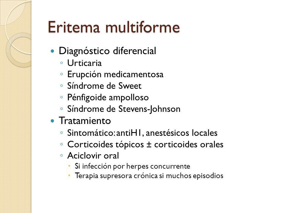 Eritema multiforme Diagnóstico diferencial Tratamiento Urticaria