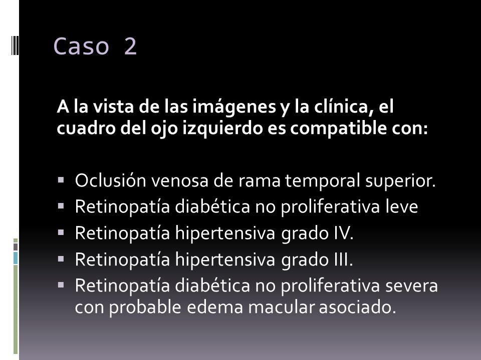 Caso 2 A la vista de las imágenes y la clínica, el cuadro del ojo izquierdo es compatible con: Oclusión venosa de rama temporal superior.