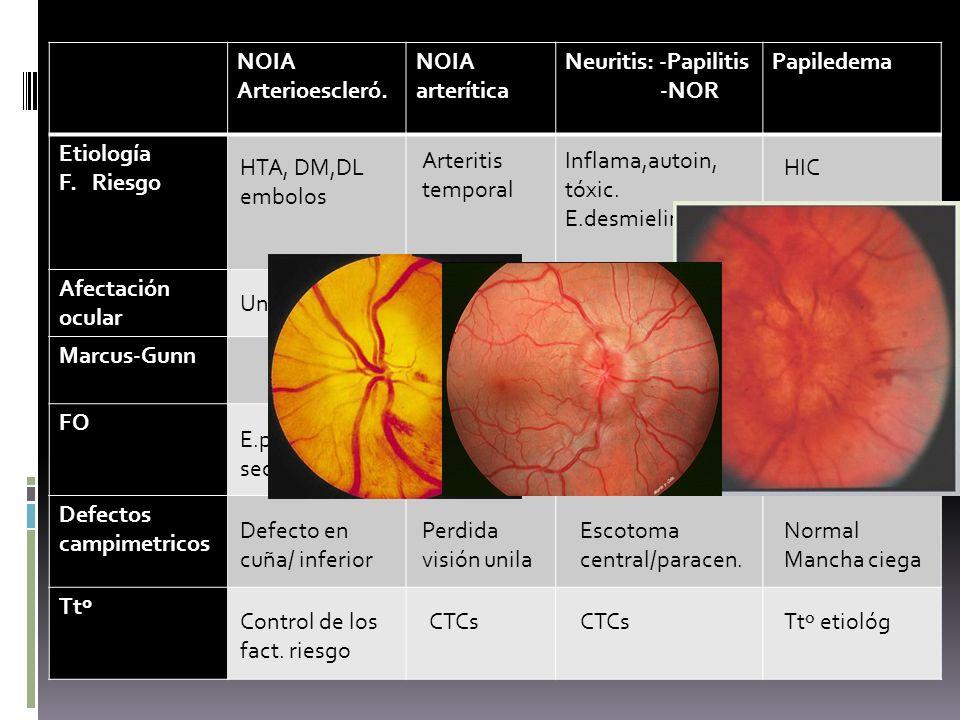 NOIA Arterioescleró. arterítica. Neuritis: -Papilitis. -NOR. Papiledema. Etiología. F. Riesgo.