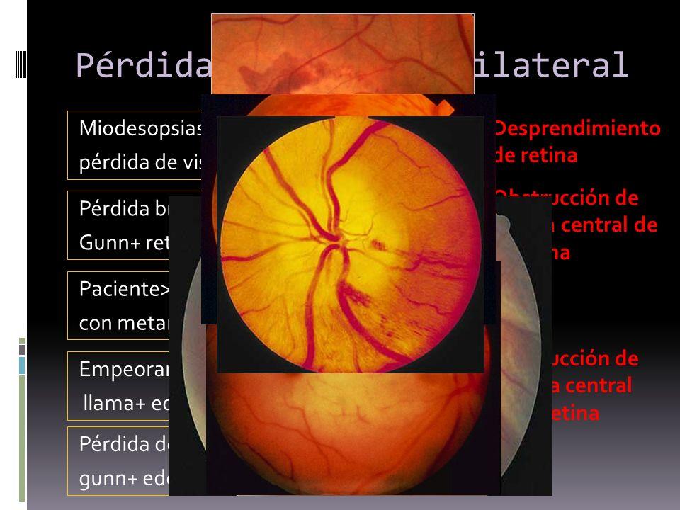 Pérdida de visión unilateral