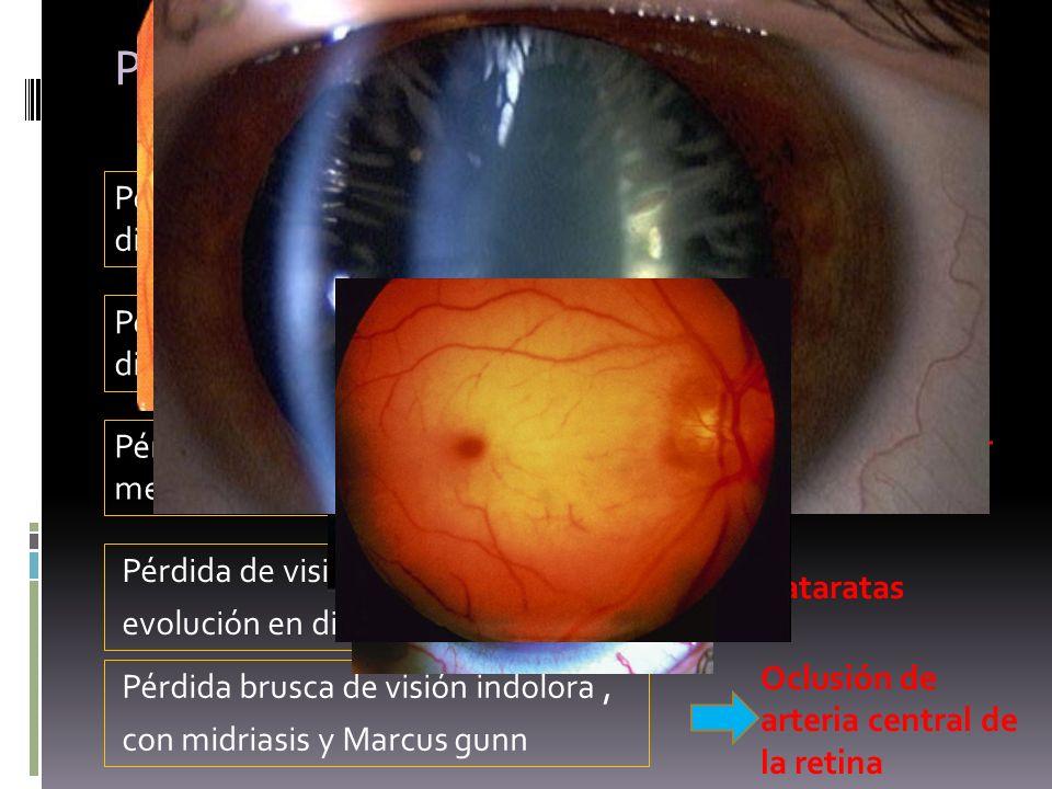 Perdidas de visión en diabéticos