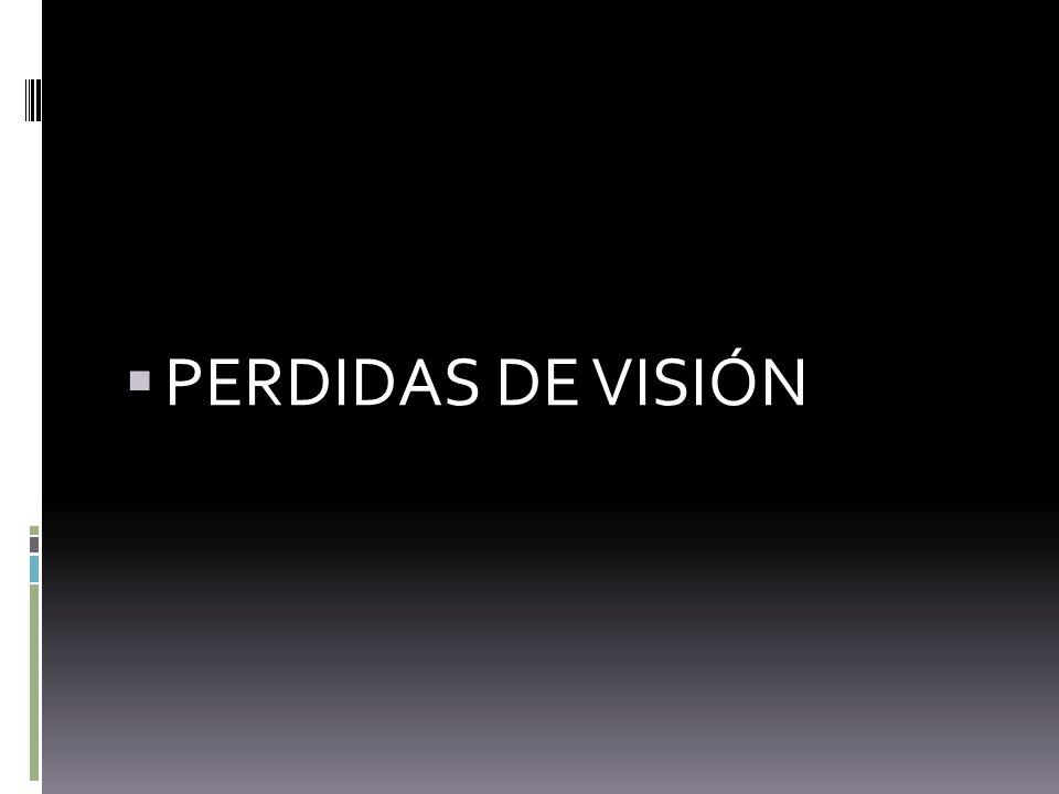 PERDIDAS DE VISIÓN