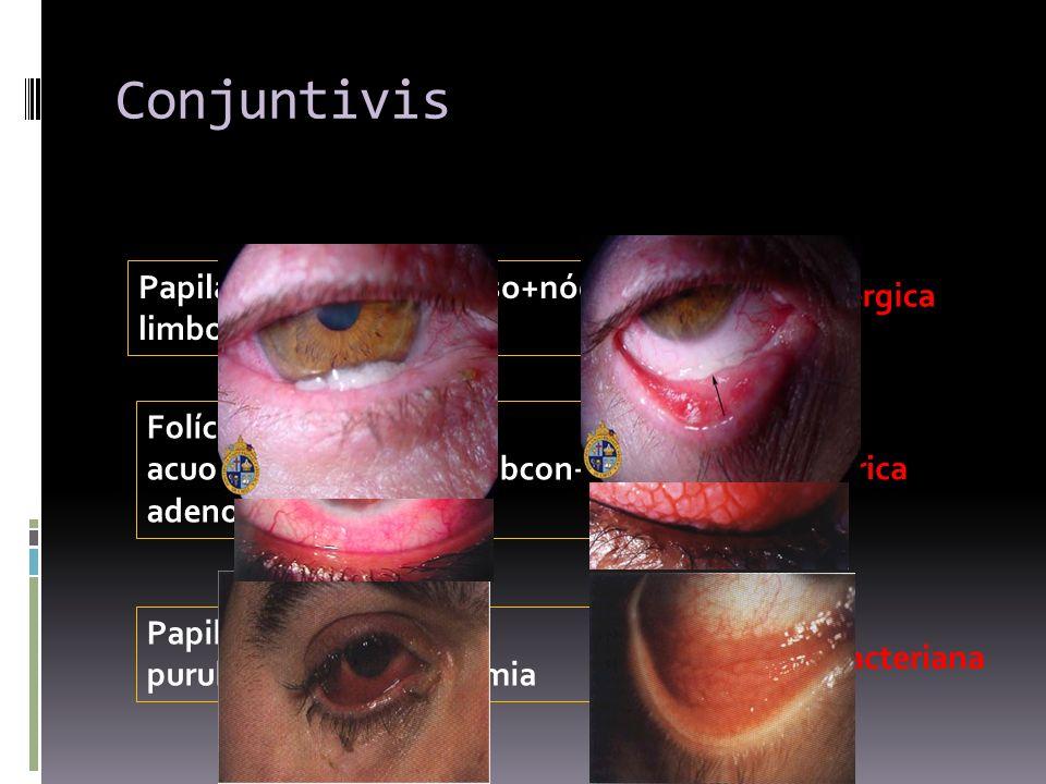 Conjuntivis Papilas+exudado mucoso+nódulos limbo+picor C. alérgica