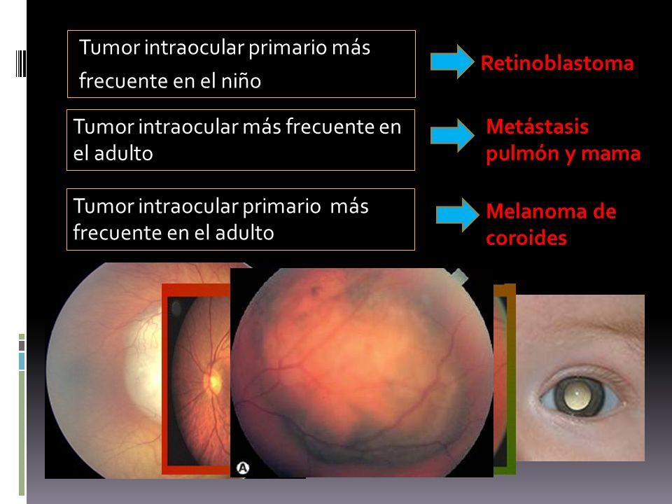 Tumor intraocular primario más frecuente en el niño