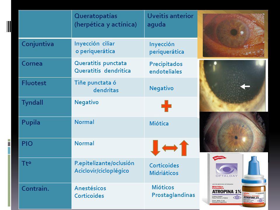 (herpética y actínica) Uveitis anterior aguda Glaucoma ángulo cerrado