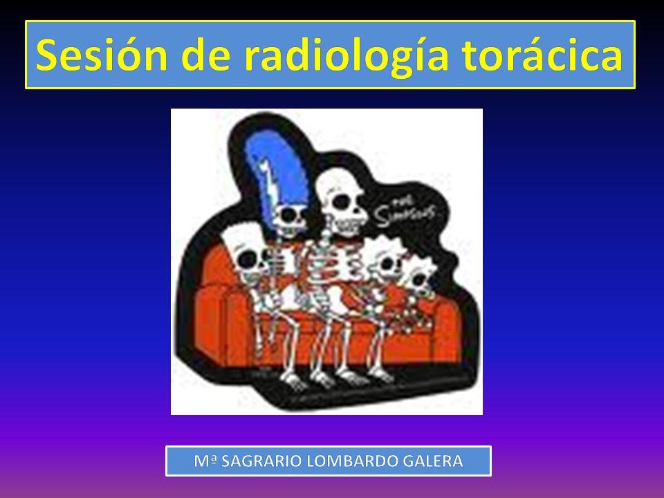Sesión de radiología torácica Mª SAGRARIO LOMBARDO GALERA