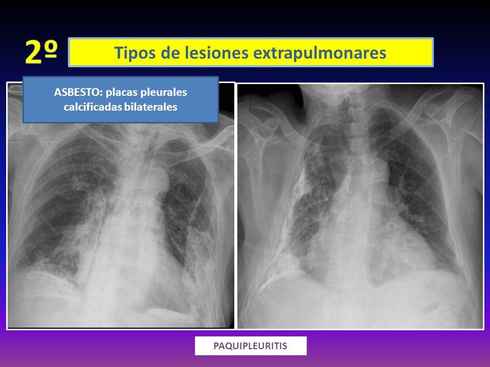 2º Tipos de lesiones extrapulmonares