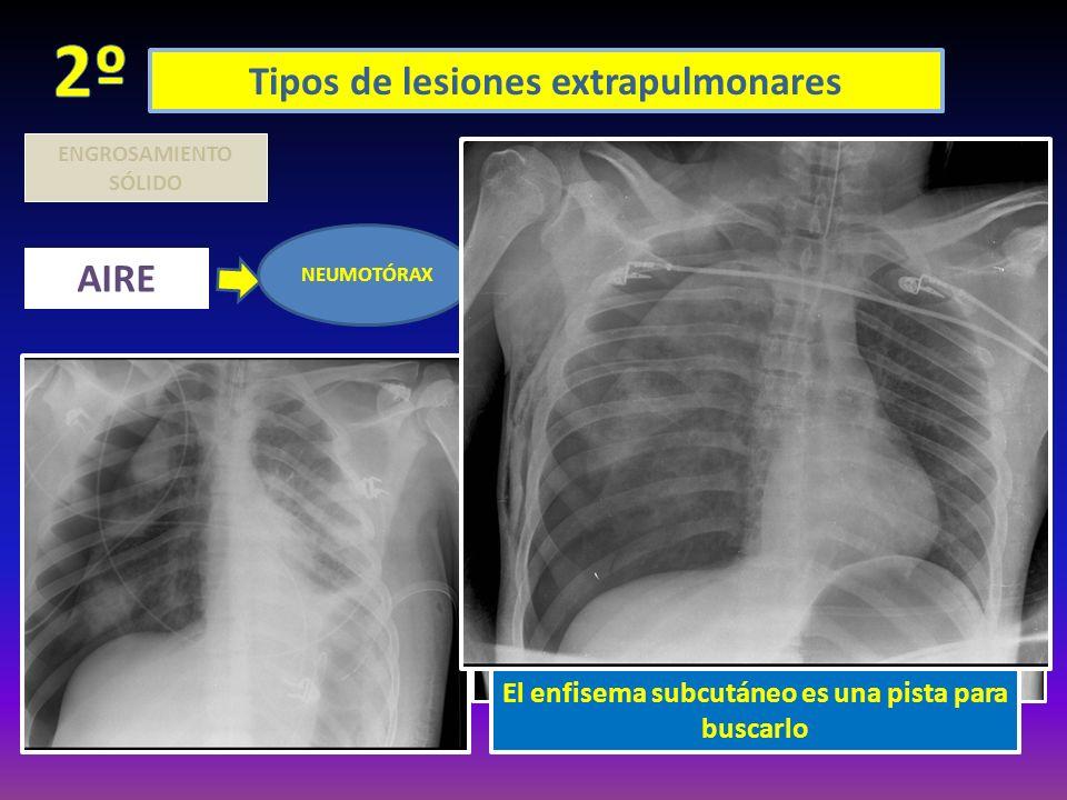 2º Tipos de lesiones extrapulmonares AIRE