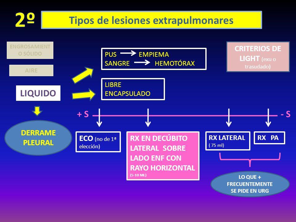 2º Tipos de lesiones extrapulmonares LIQUIDO + S - S