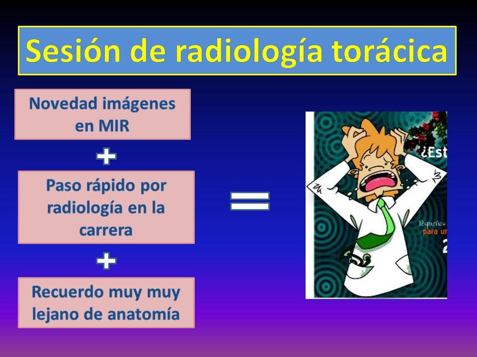 Sesión de radiología torácica
