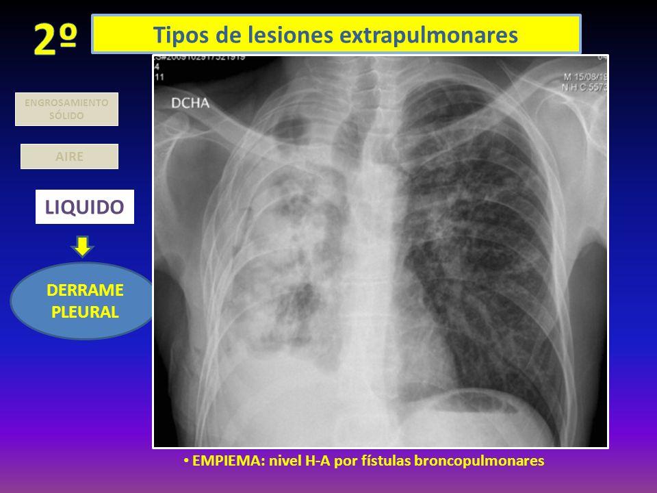 Tipos de lesiones extrapulmonares