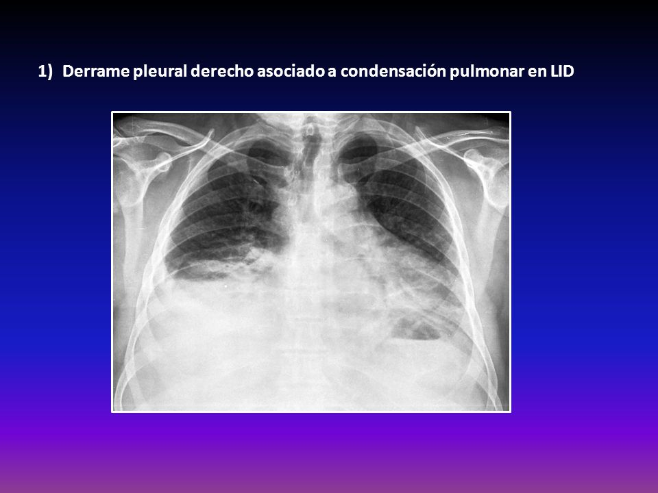 Derrame pleural derecho asociado a condensación pulmonar en LID