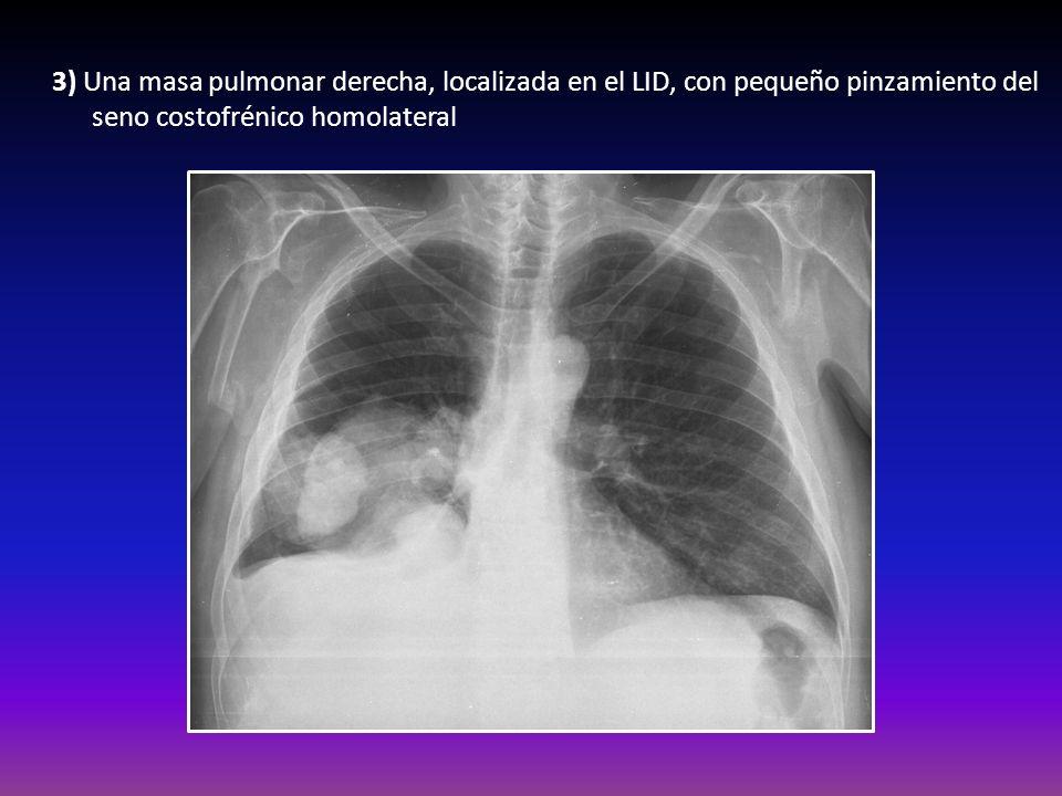 3) Una masa pulmonar derecha, localizada en el LID, con pequeño pinzamiento del