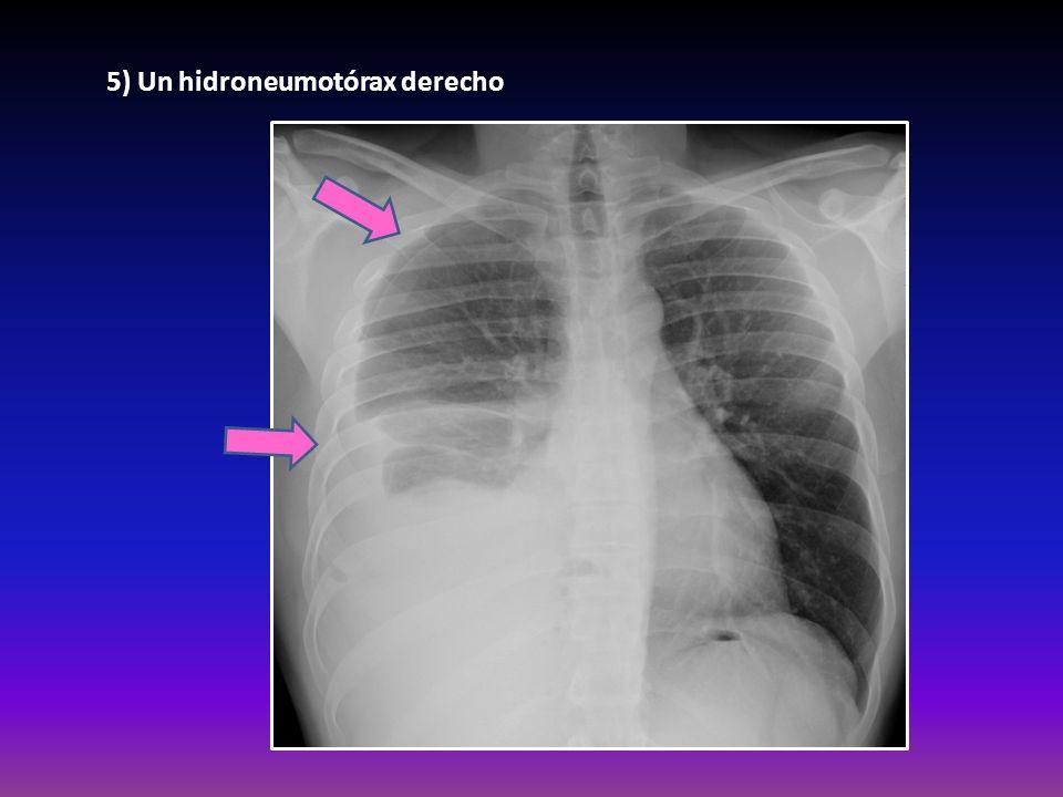 5) Un hidroneumotórax derecho