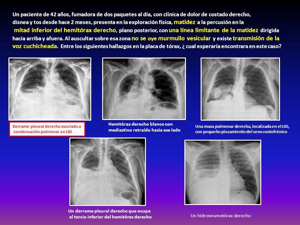 Un paciente de 42 años, fumadora de dos paquetes al día, con clínica de dolor de costado derecho,