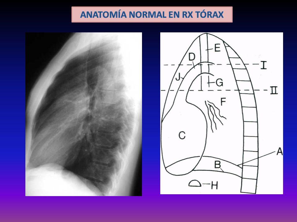 ANATOMÍA NORMAL EN RX TÓRAX