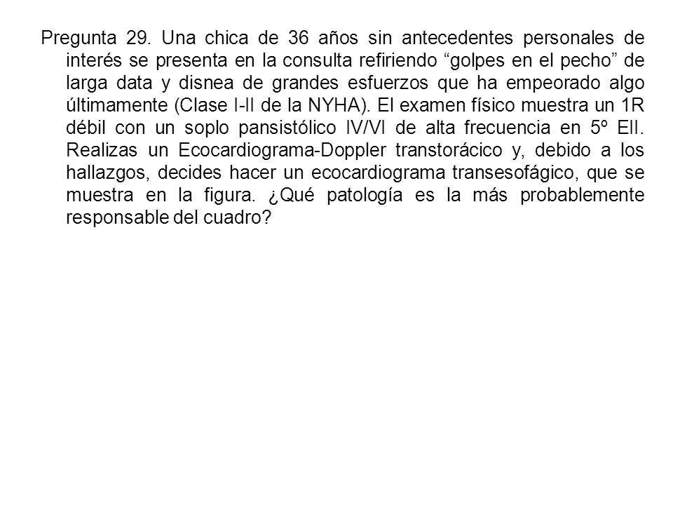 Pregunta 29.
