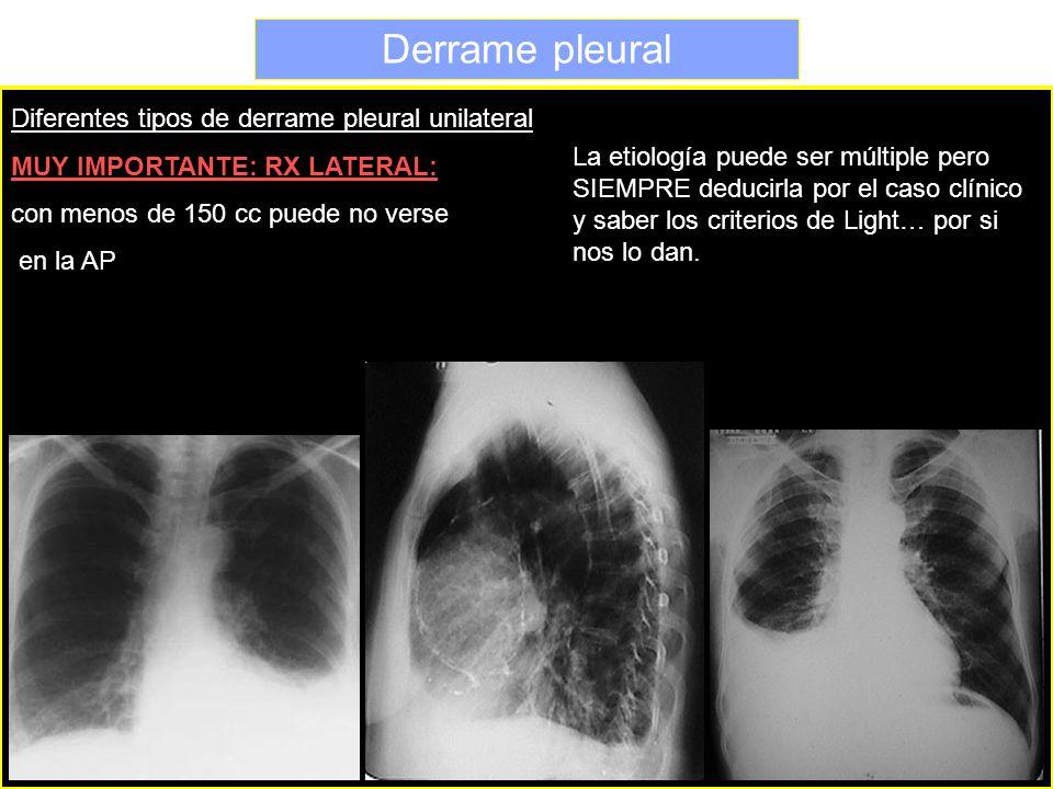 Derrame pleural Diferentes tipos de derrame pleural unilateral