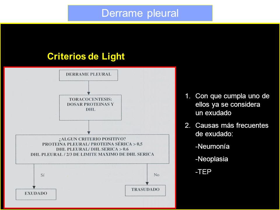 Derrame pleural Criterios de Light
