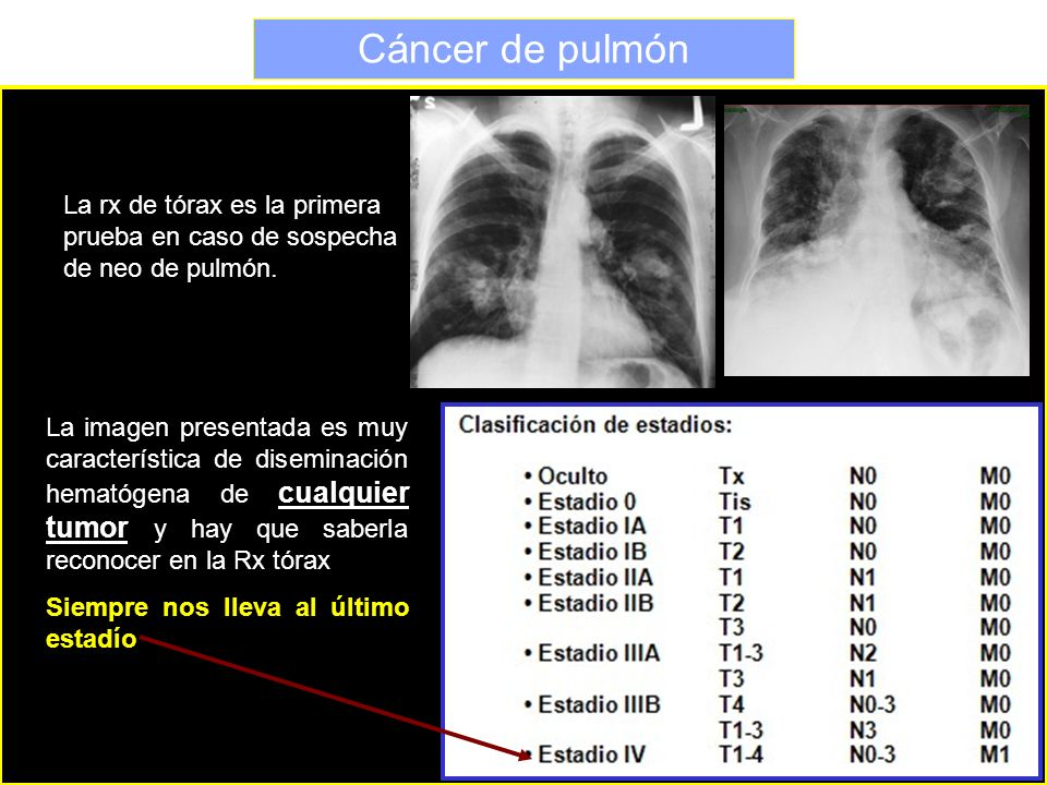 Cáncer de pulmón La rx de tórax es la primera prueba en caso de sospecha de neo de pulmón.