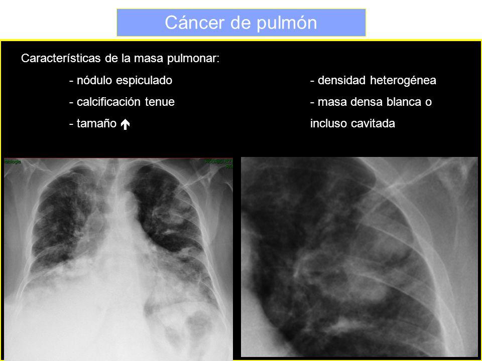 Cáncer de pulmón Características de la masa pulmonar: