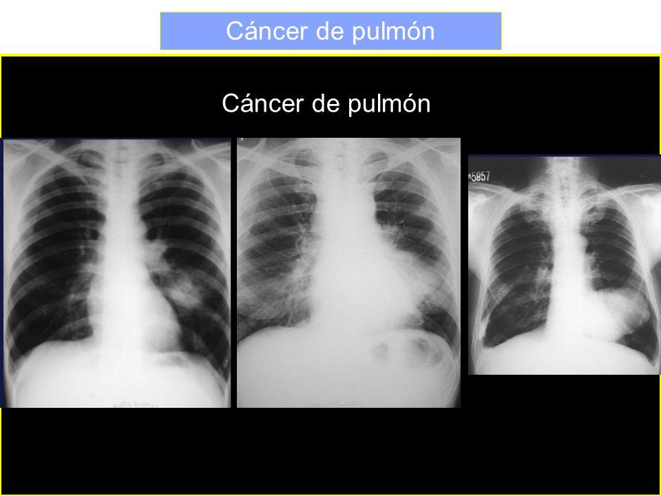 Cáncer de pulmón Cáncer de pulmón