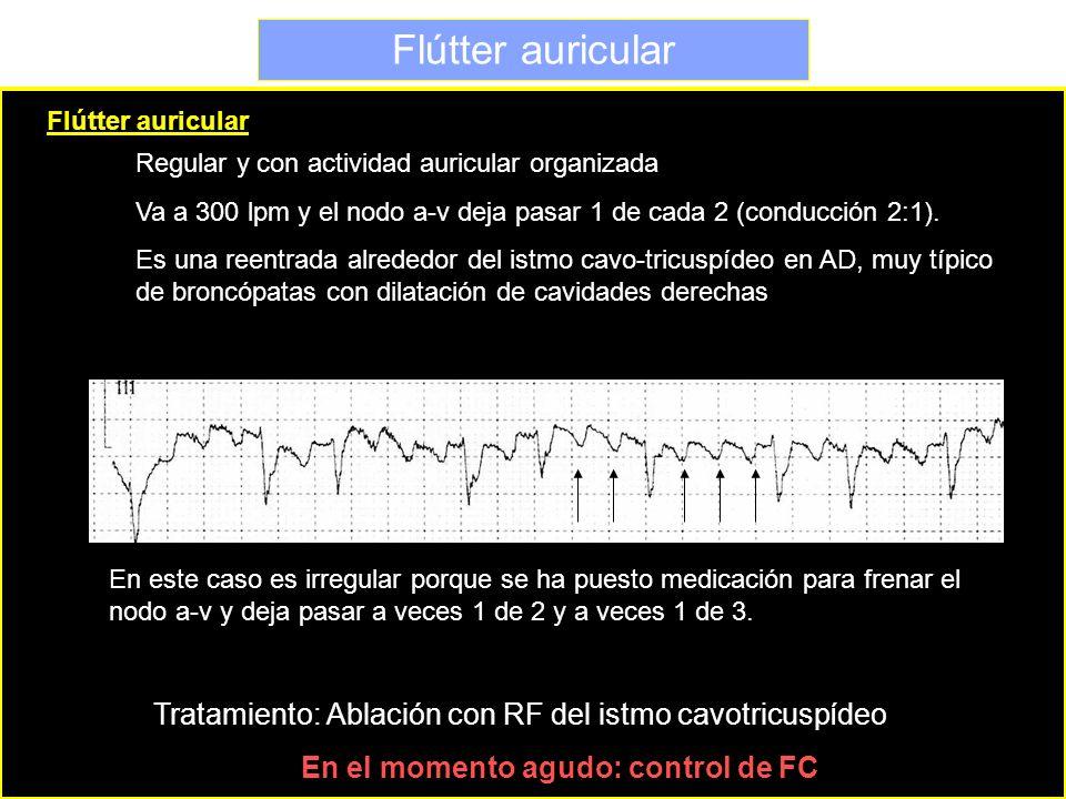 Flútter auricular Flútter auricular. Regular y con actividad auricular organizada.