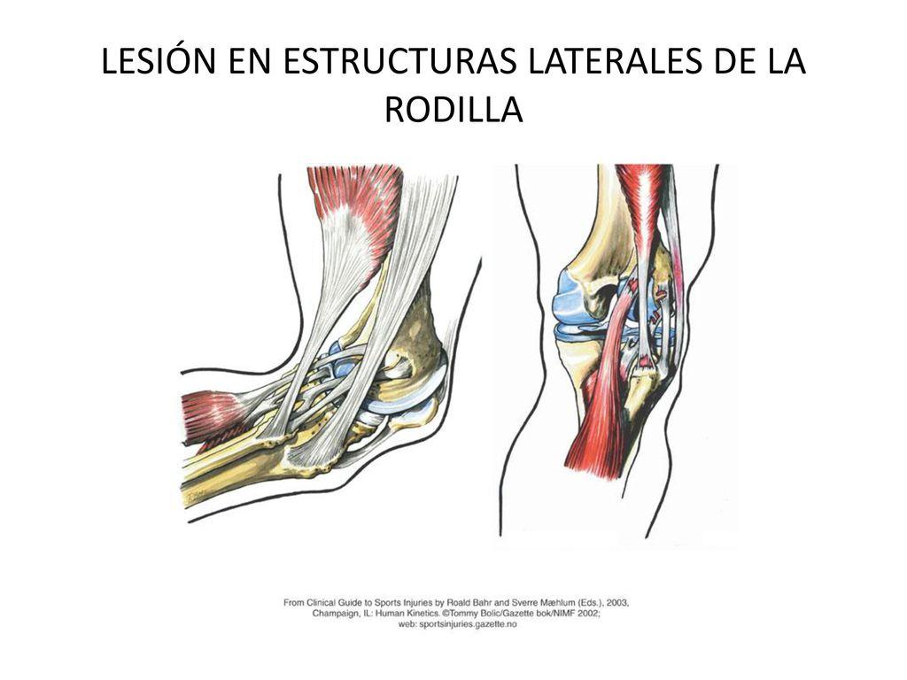 Bonito Rodilla Ligamentos Diagrama Molde - Anatomía de Las ...