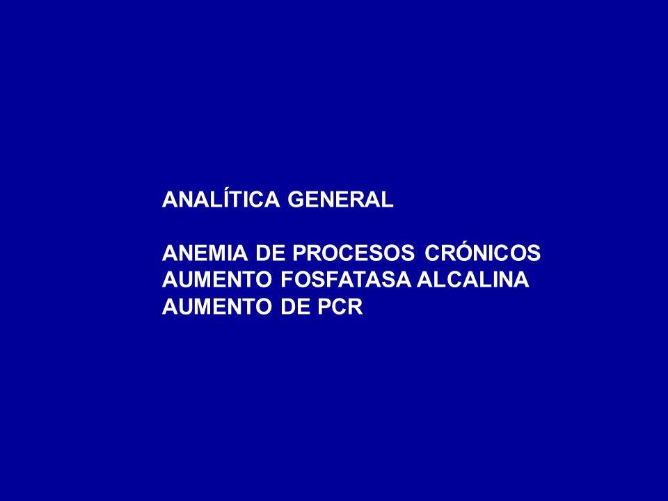 ANALÍTICA GENERAL ANEMIA DE PROCESOS CRÓNICOS AUMENTO FOSFATASA ALCALINA AUMENTO DE PCR