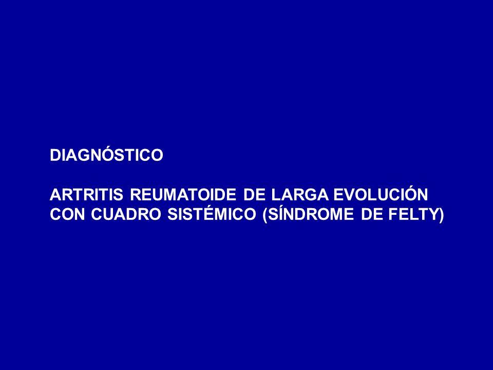 DIAGNÓSTICO ARTRITIS REUMATOIDE DE LARGA EVOLUCIÓN CON CUADRO SISTÉMICO (SÍNDROME DE FELTY)