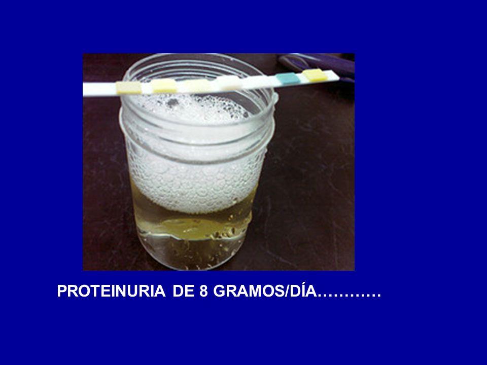 PROTEINURIA DE 8 GRAMOS/DÍA…………