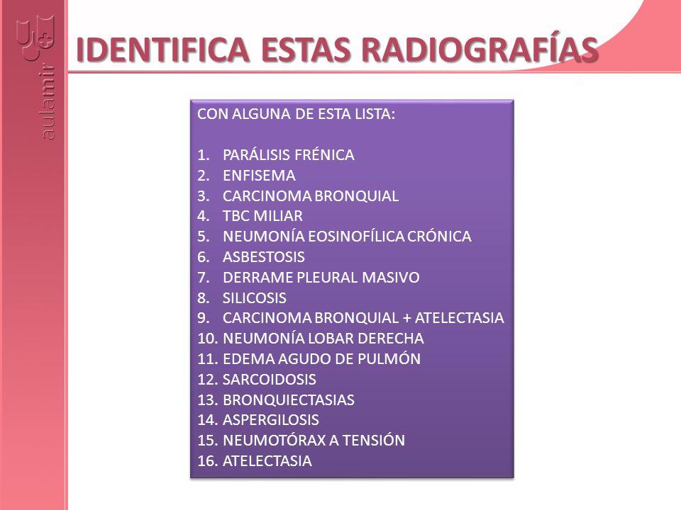 IDENTIFICA ESTAS RADIOGRAFÍAS