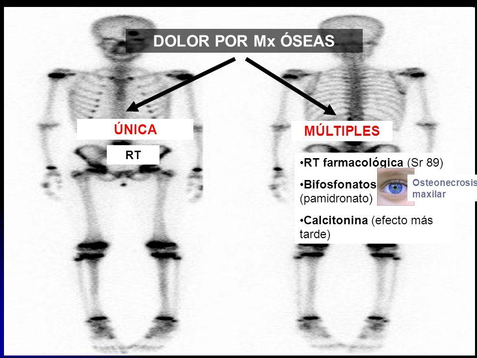 DOLOR POR Mx ÓSEAS ÚNICA MÚLTIPLES RT RT farmacológica (Sr 89)