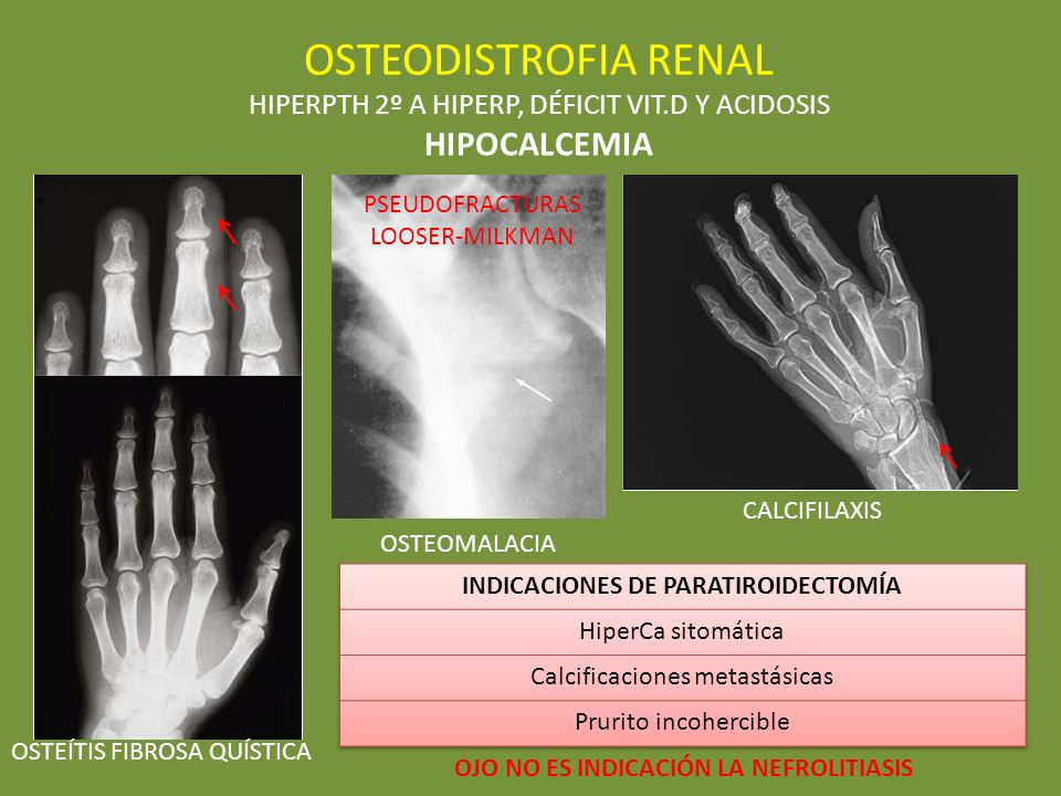 OSTEODISTROFIA RENAL HIPOCALCEMIA
