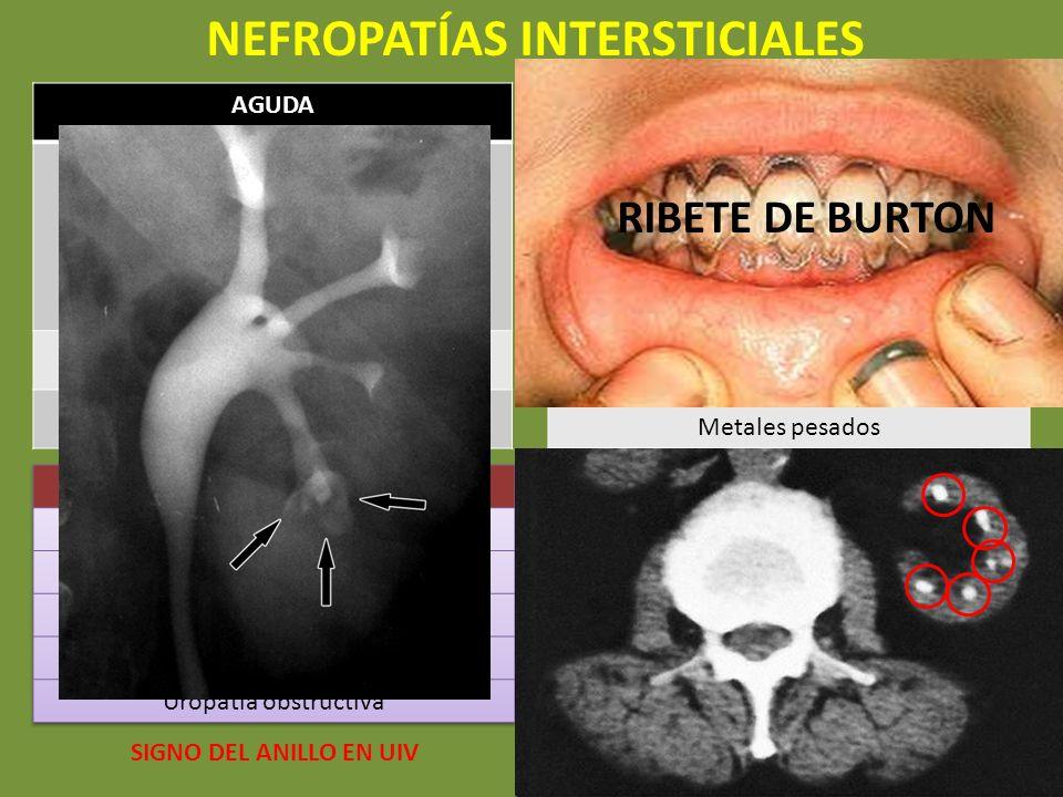 NEFROPATÍAS INTERSTICIALES