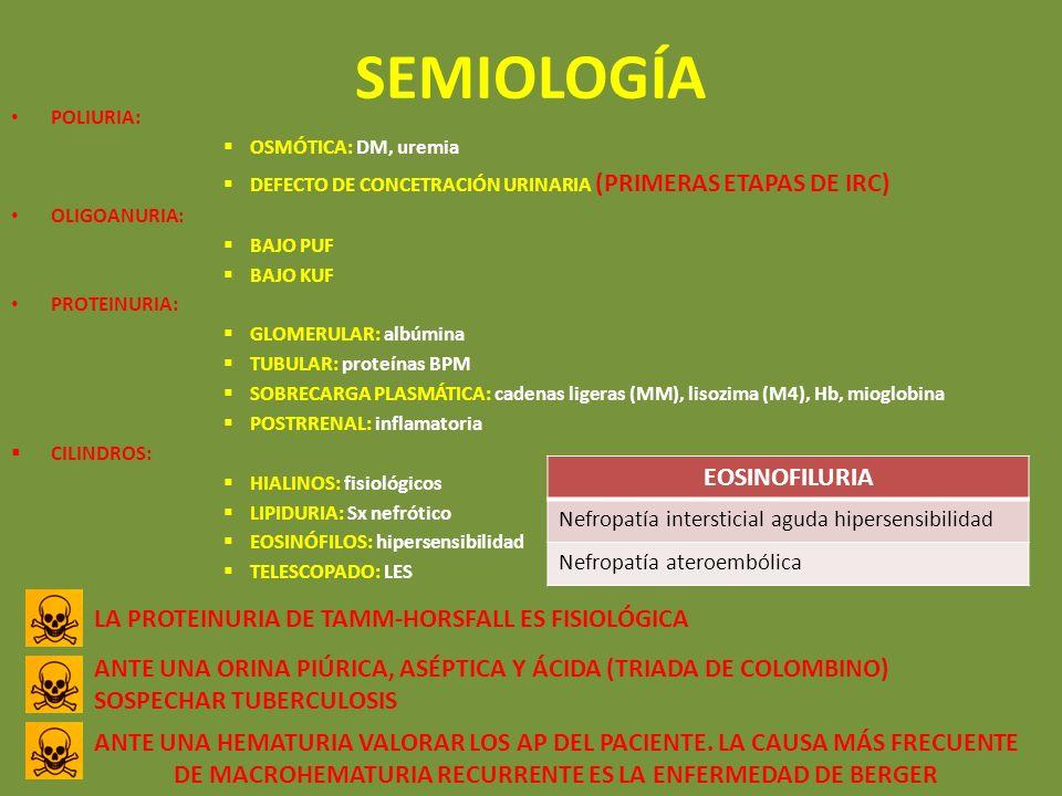 SEMIOLOGÍA EOSINOFILURIA