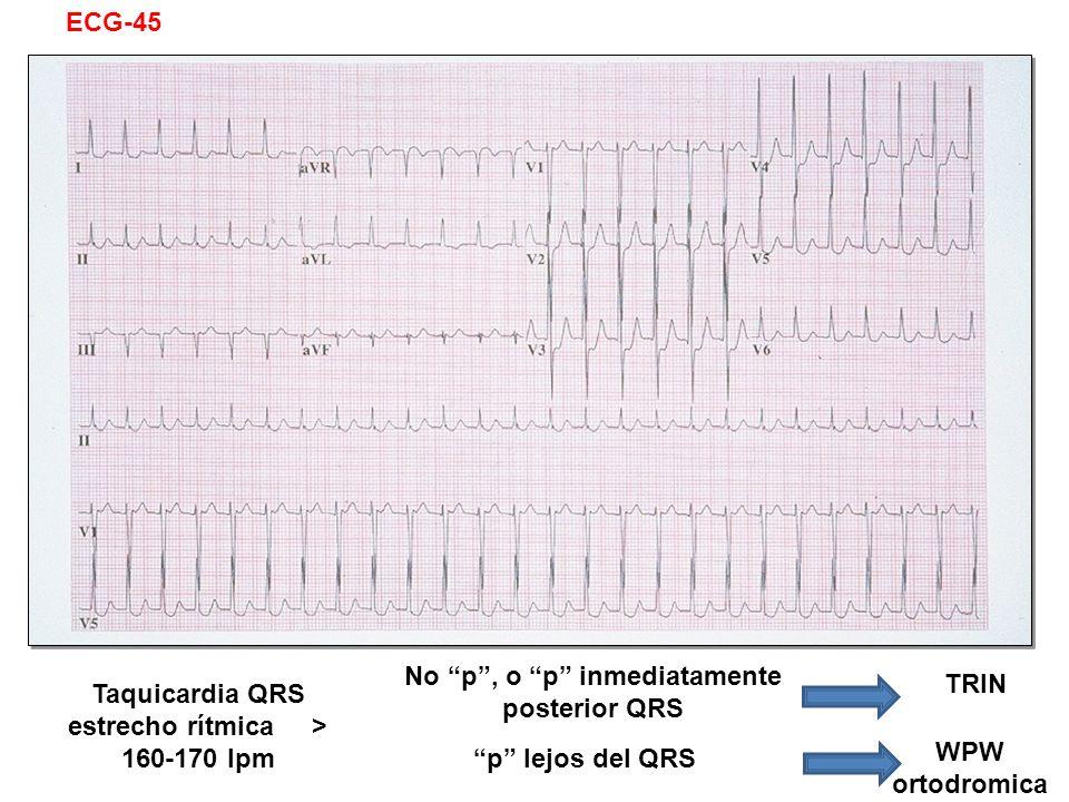 No p , o p inmediatamente posterior QRS TRIN