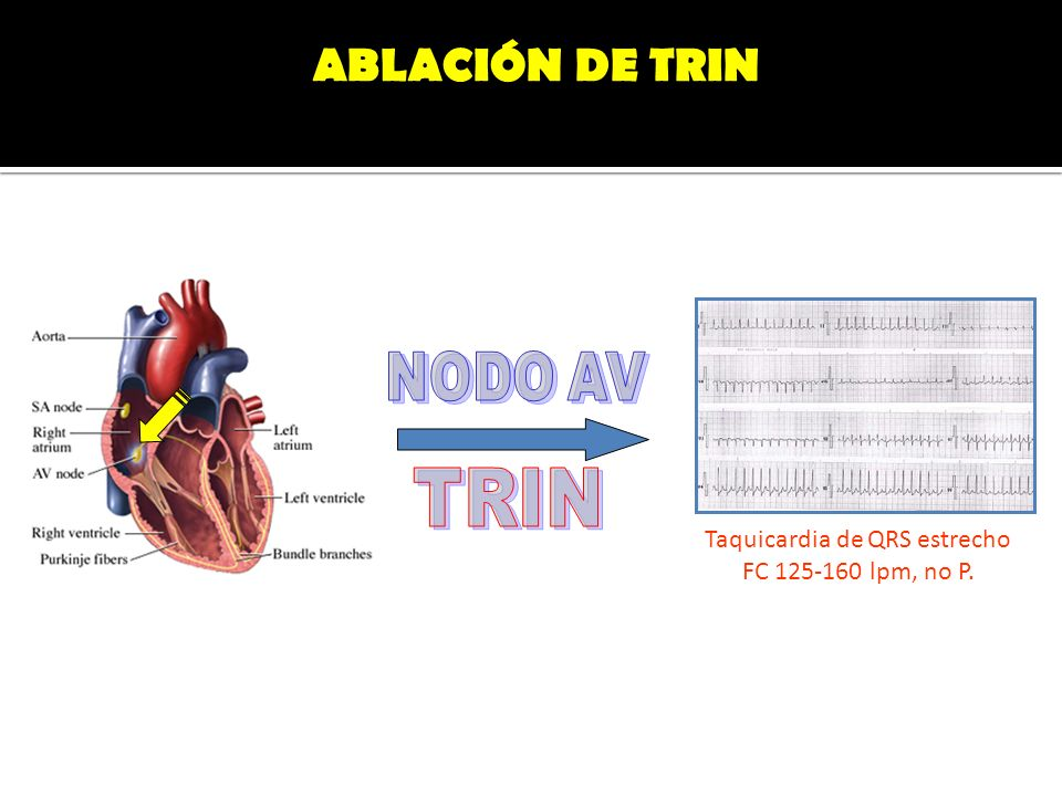 Taquicardia de QRS estrecho