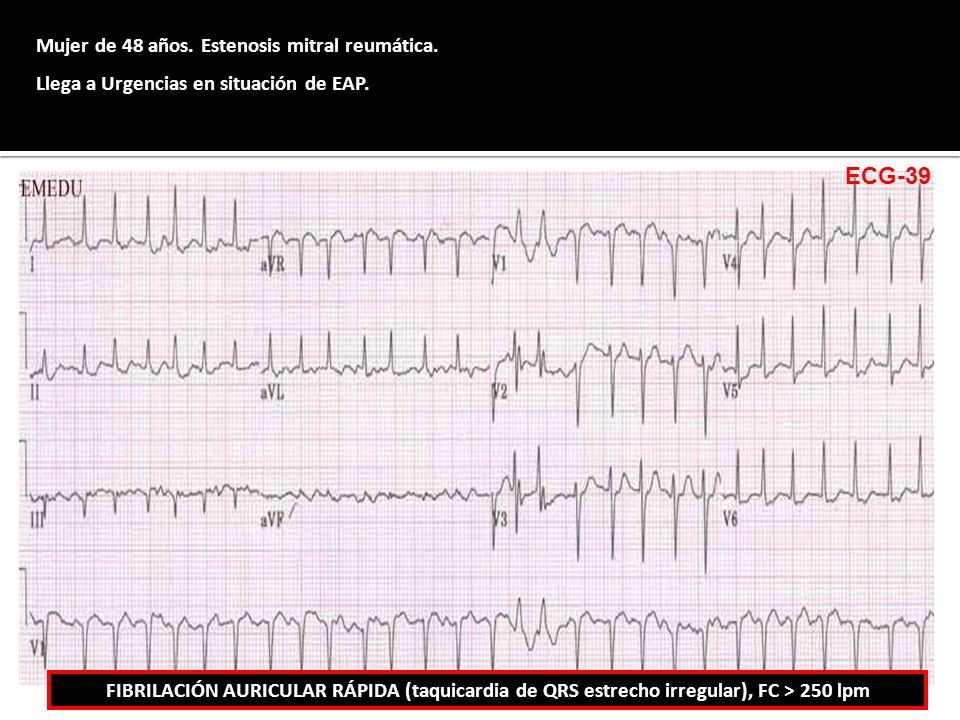ECG-39 Mujer de 48 años. Estenosis mitral reumática.