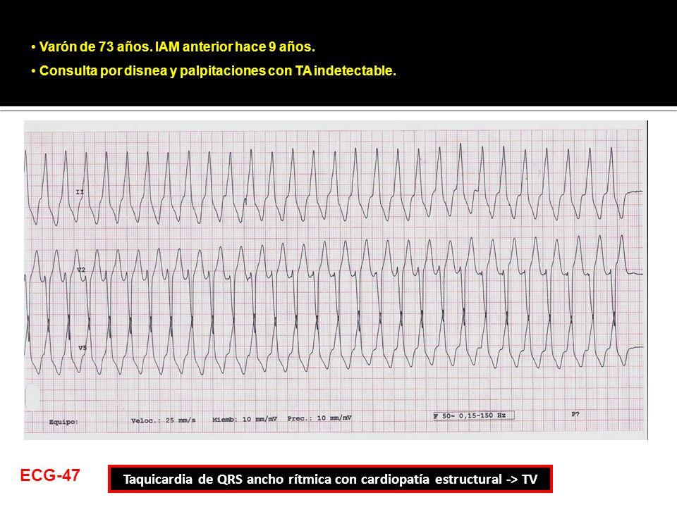 Taquicardia de QRS ancho rítmica con cardiopatía estructural -> TV