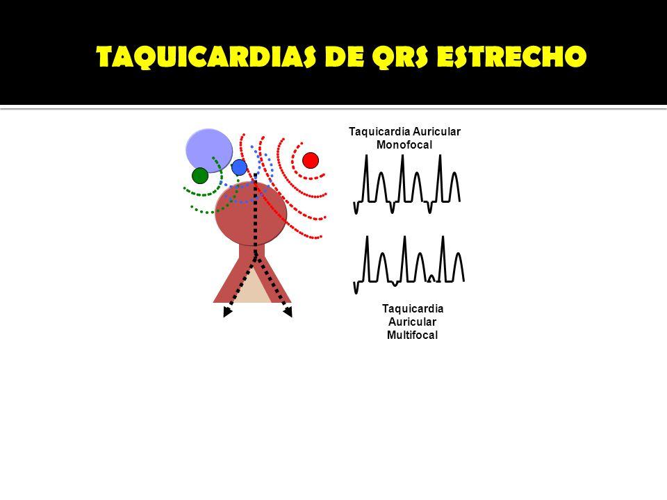 TAQUICARDIAS DE QRS ESTRECHO