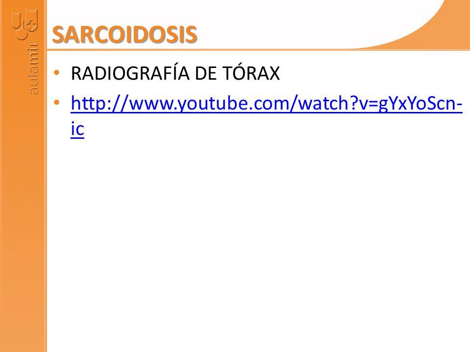 SARCOIDOSIS RADIOGRAFÍA DE TÓRAX