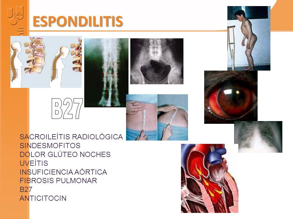 ESPONDILITIS B27 SACROILEÍTIS RADIOLÓGICA SINDESMOFITOS