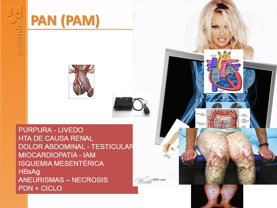 PAN (PAM) PÚRPURA - LIVEDO HTA DE CAUSA RENAL