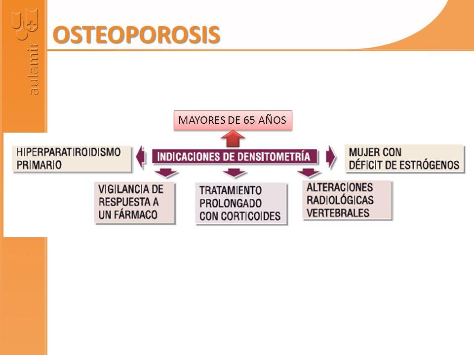 OSTEOPOROSIS MAYORES DE 65 AÑOS