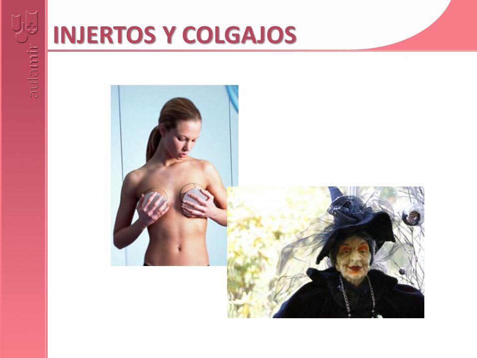 INJERTOS Y COLGAJOS