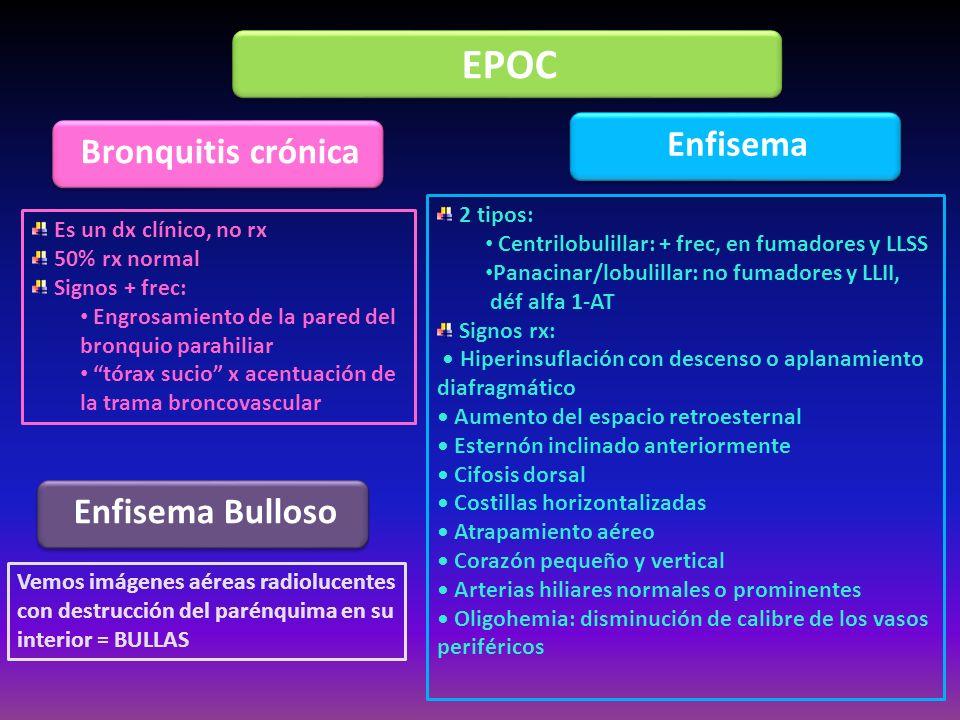 EPOC Enfisema Bronquitis crónica Enfisema Bulloso 2 tipos: