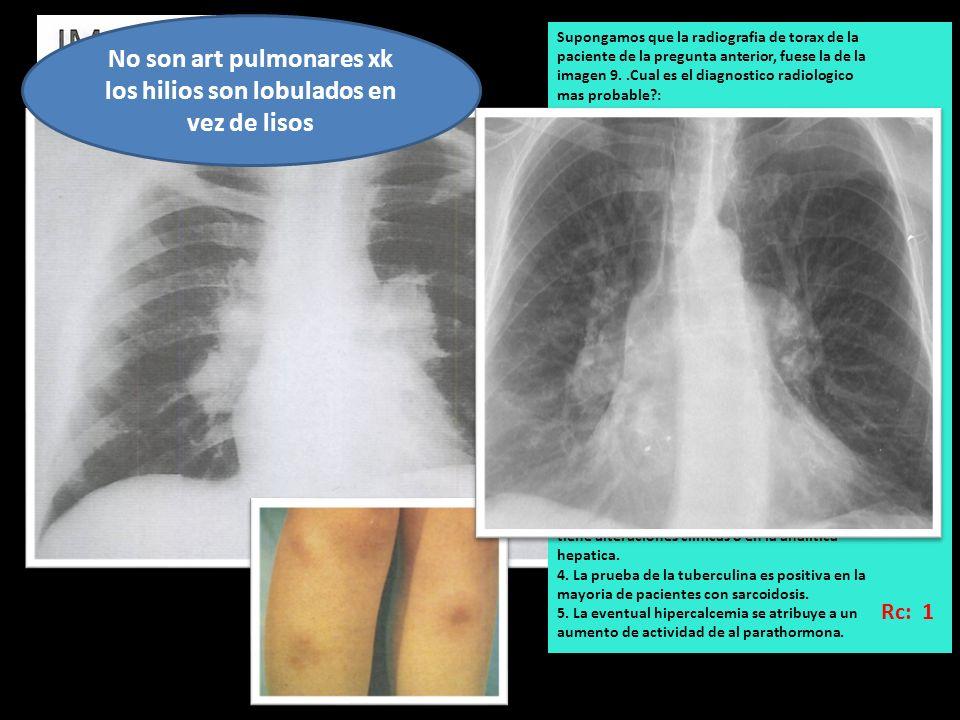 No son art pulmonares xk los hilios son lobulados en vez de lisos