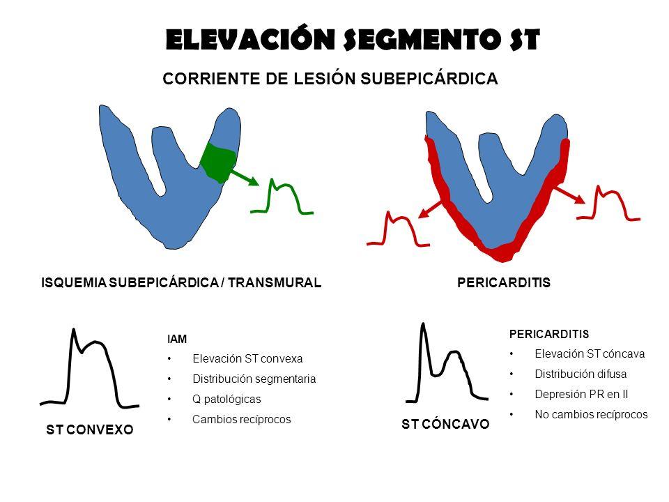 ELEVACIÓN SEGMENTO ST CORRIENTE DE LESIÓN SUBEPICÁRDICA