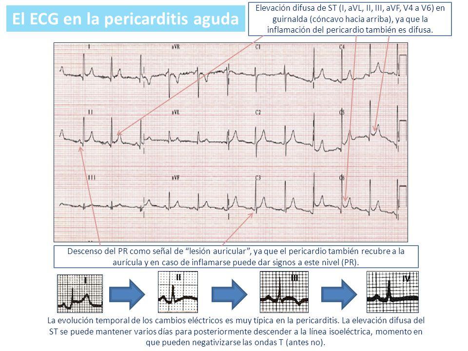 El ECG en la pericarditis aguda